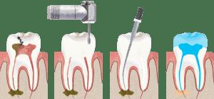 Chữa tuỷ răng và những cái cần biết