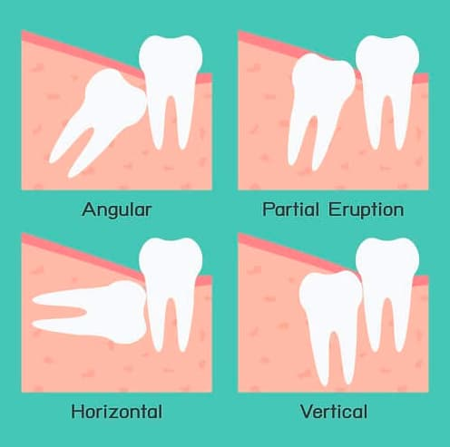 Vì sao răng khôn thi thoảng trồi lên như 1 vị thần?