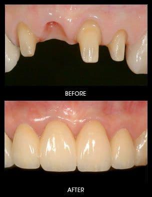 Tác hại và cách khắc phục khi bị mất răng
