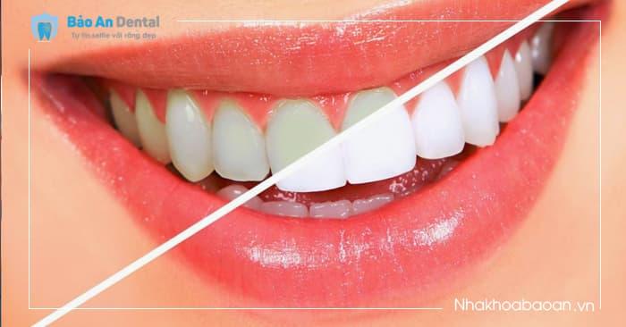Tẩy Trắng Răng tại Nhà ( 1 cặp máng tẩy + 1-2 ống thuốc)