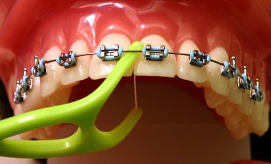 Vệ sinh răng miệng sau khi niềng răng sao cho đúng?