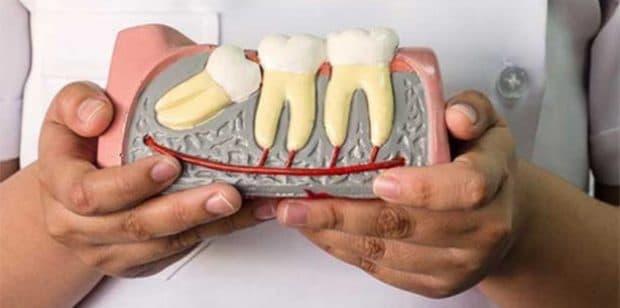 Hiểm họa tiềm ẩn khi răng khôn hàm trên mọc?