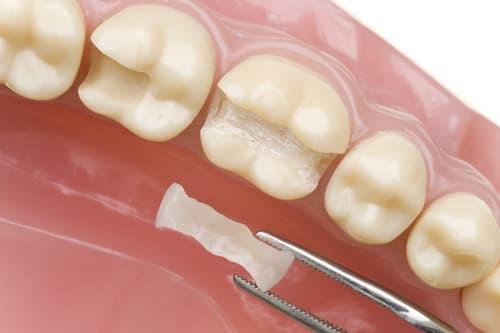 Inlay onlay phương pháp Trám răng Thẩm Mỹ
