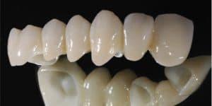 Răng sứ thẩm mỹ CERCON