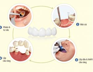 Răng sứ thẩm mỹ  EMAX