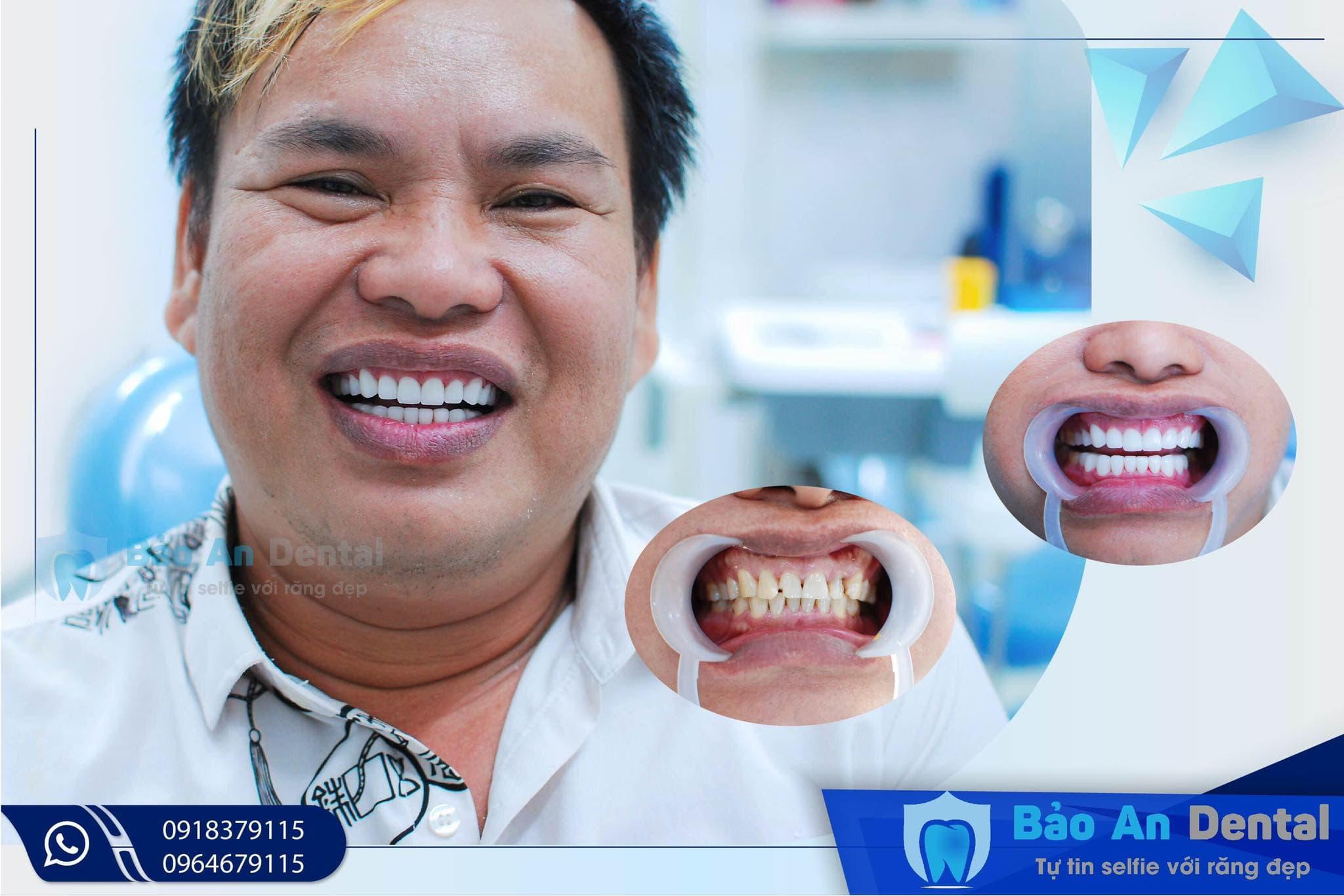 Làm răng 7