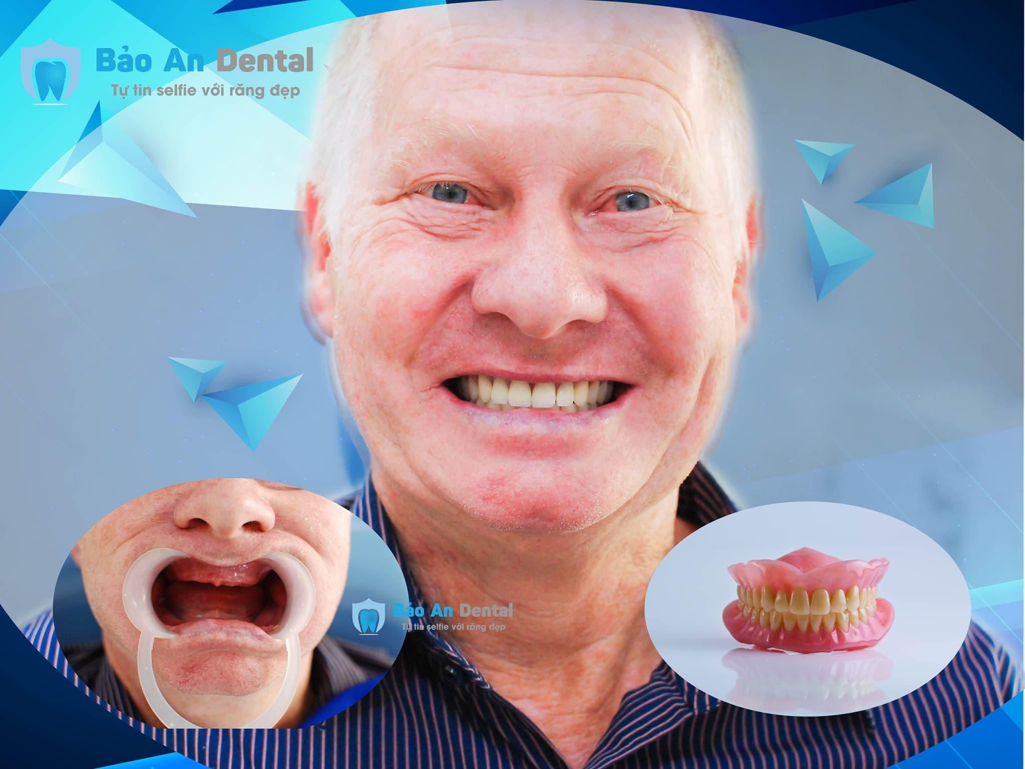 Làm răng 6