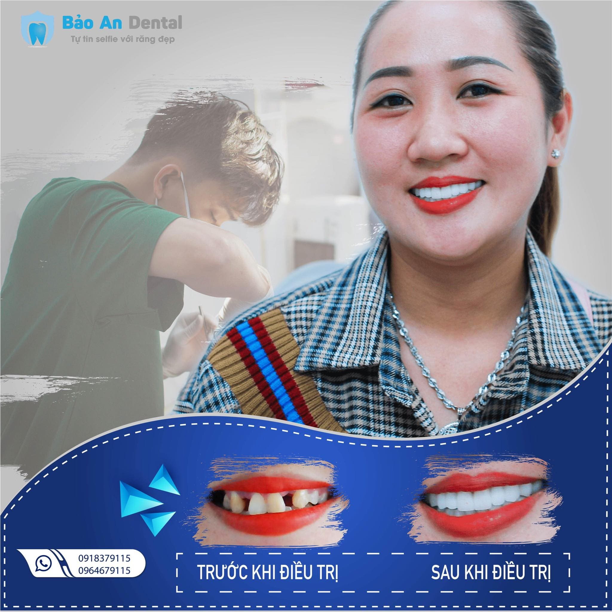 Làm răng 8