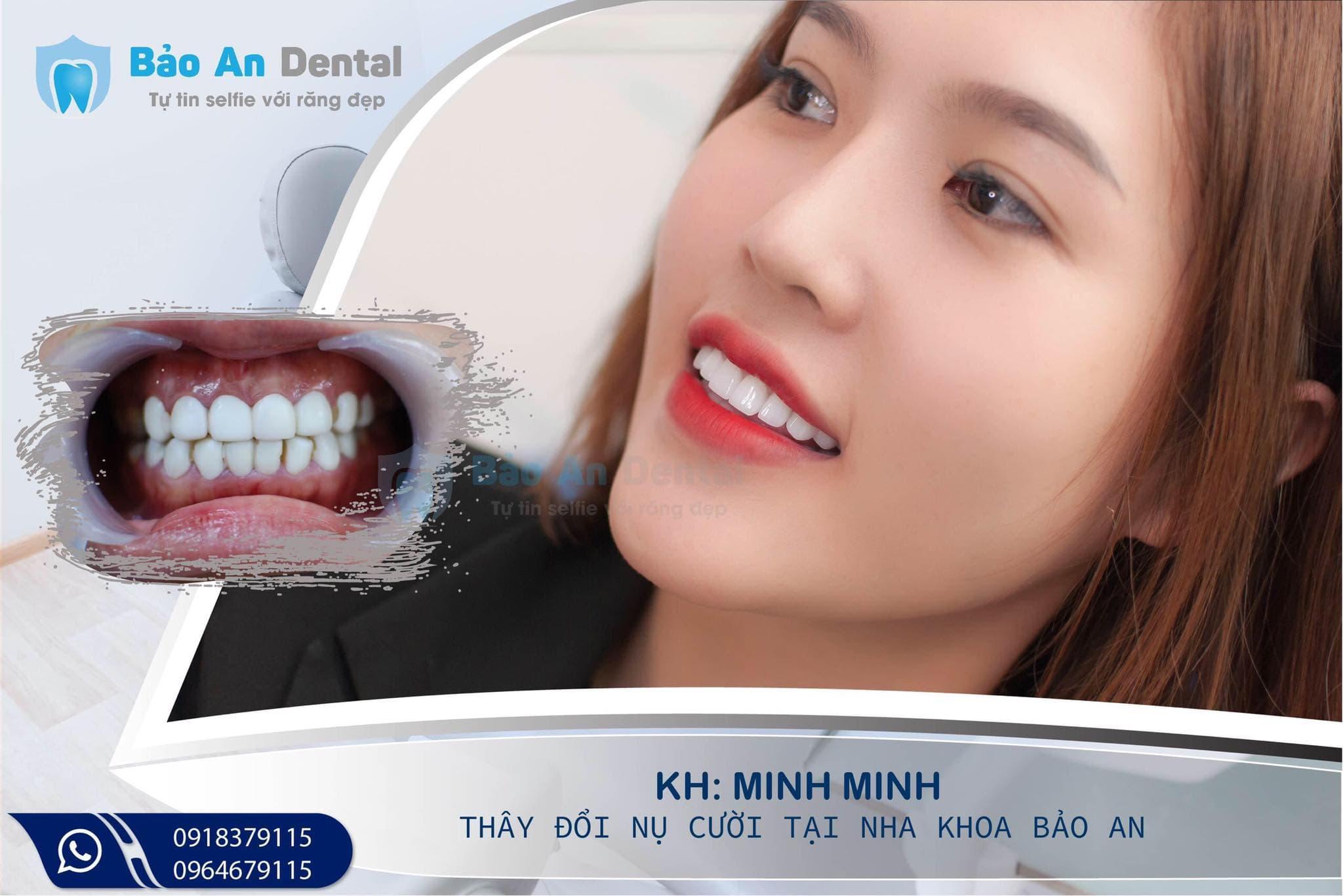 Làm răng 5