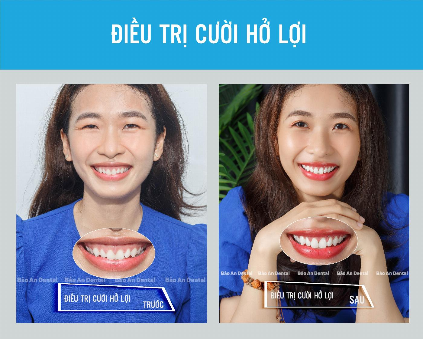 Điều trị cười hở lợi – Nguyên nhân và cách khắc phục (các phương pháp điều trị)