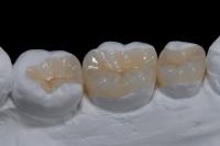 Inlay onlay phương pháp Trám răng Thẩm Mỹ tại nha khoa Thẩm Mỹ Bảo An