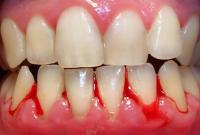 Chảy máu chân răng  Nguyên nhân  cách chữa trị