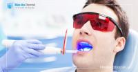 Tẩy Trắng Răng tại Phòng Khám (Hệ thống Plasma- USA)