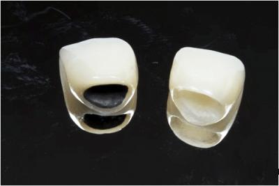 Bọc răng sứ loại nào tốt hiện nay ?