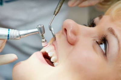 Bạn có biết vôi răng là gì ? Nó có hình dạng thế nào ?