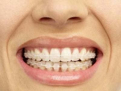 Có bao nhiêu loại niềng răng chính hiện nay ?