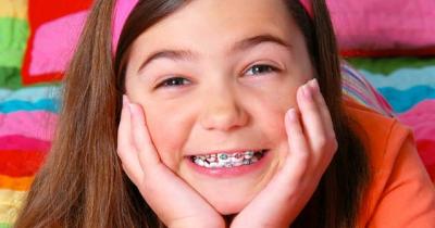 Độ tuổi nào phù hợp để niềng răng