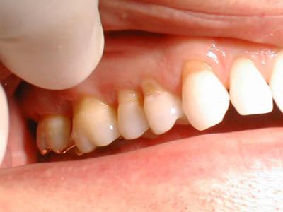 Mòn cổ răng là sao và cách điều trị mòn cổ răng