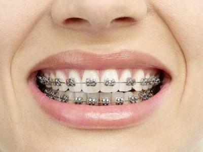 Niềng răng là gì ? Niềng răng ở đâu tốt ?