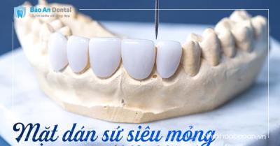 Mặt Dán Sứ Nano không mài răng ( Chính Hãng Đức)