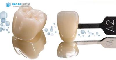 Răng Sứ Diamond LaVa Plus USA ( Chính Hãng Usa )