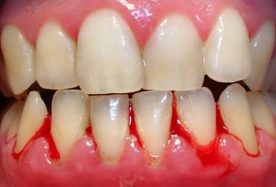 Chảy máu chân răng – Nguyên nhân & cách chữa trị