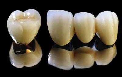 Răng sứ kim loại thường là gì?