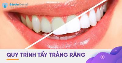 Tẩy trắng răng tại nha khoa Bảo An Dental Tân Bình