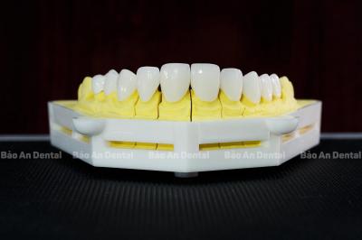 Răng Sứ Katana Là Gì? Răng Sứ Katana Có Tốt không? Ưu Điểm Và Khuyết Điểm Của Chúng?